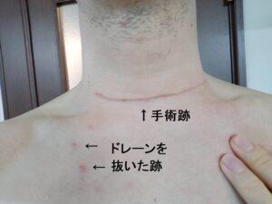 甲状腺全摘出手術から約1か月の跡20210314
